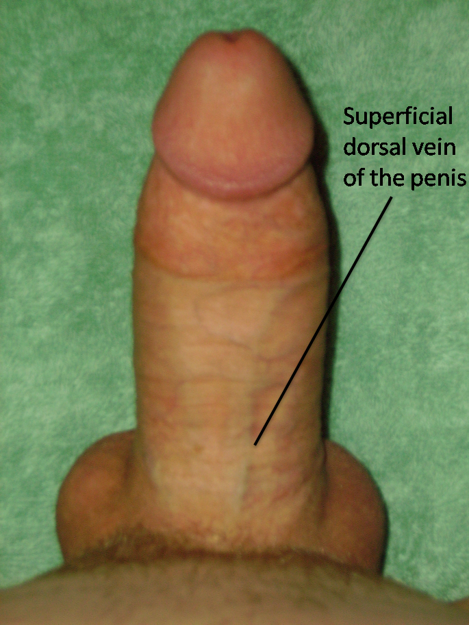 pictures erect penis