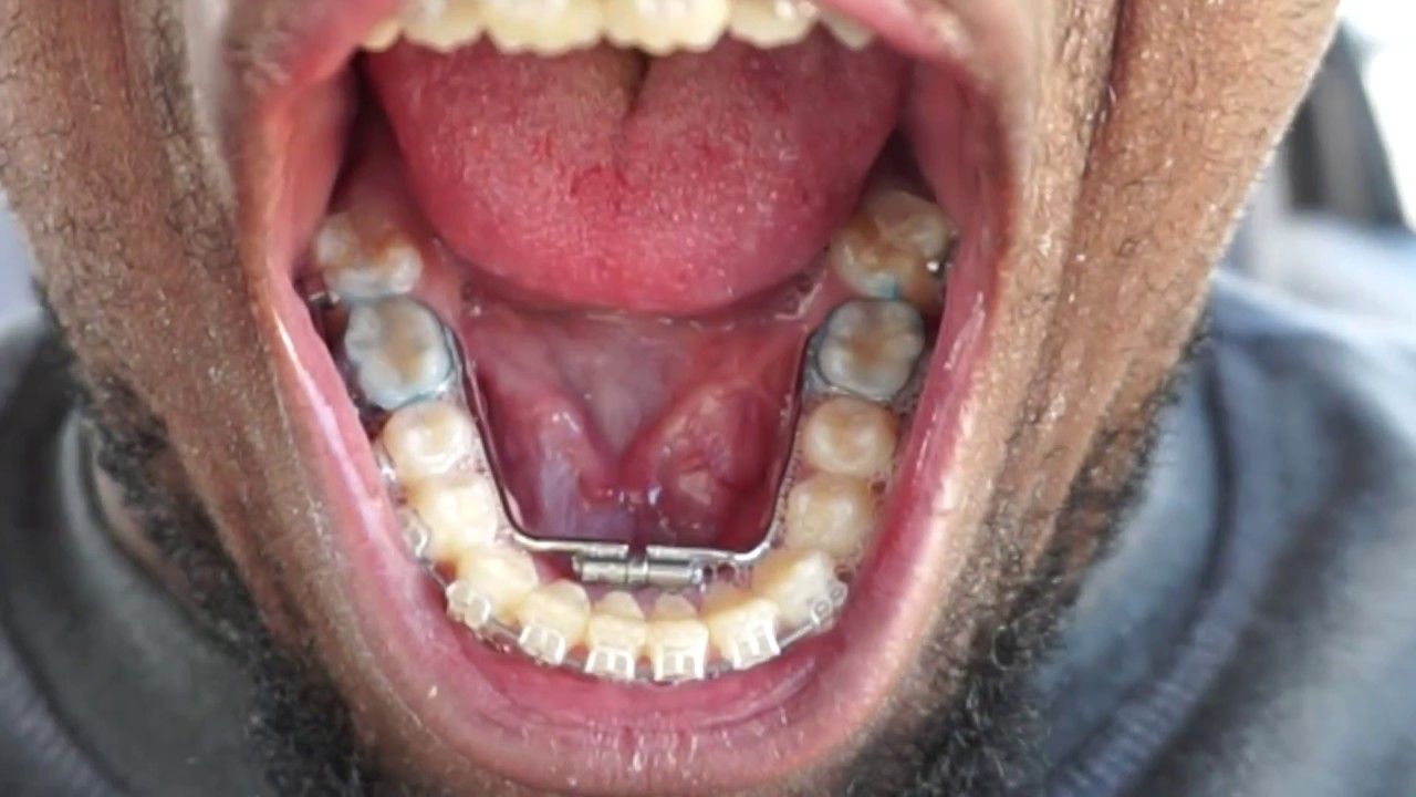 adults for jaw lower expander
