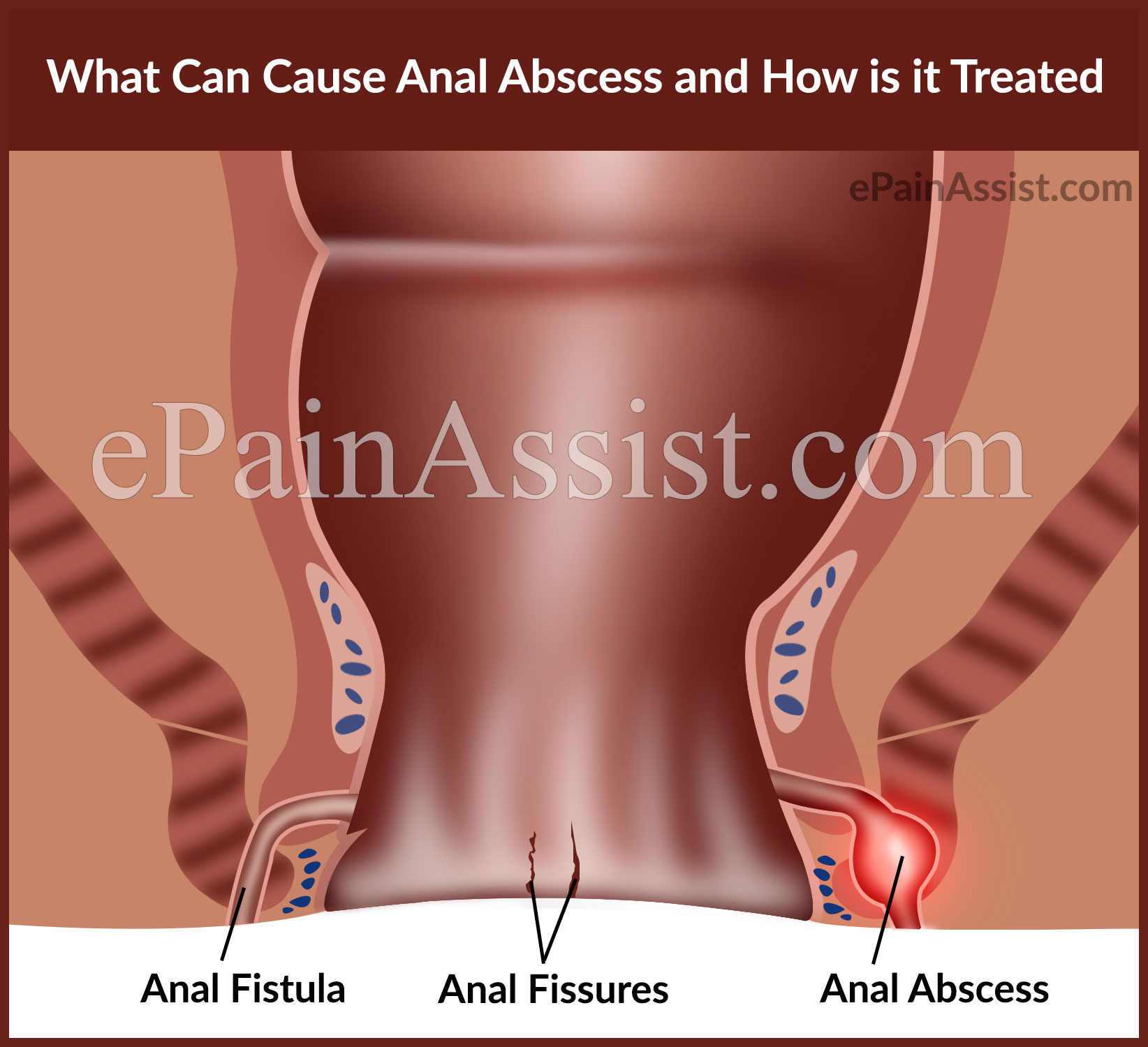 abcess treatment anal
