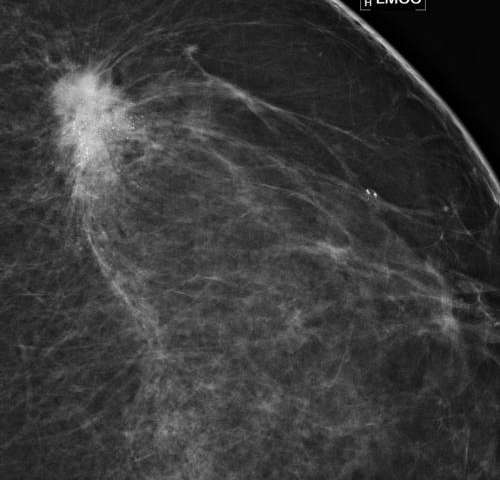 on cancer spots mammograms breast