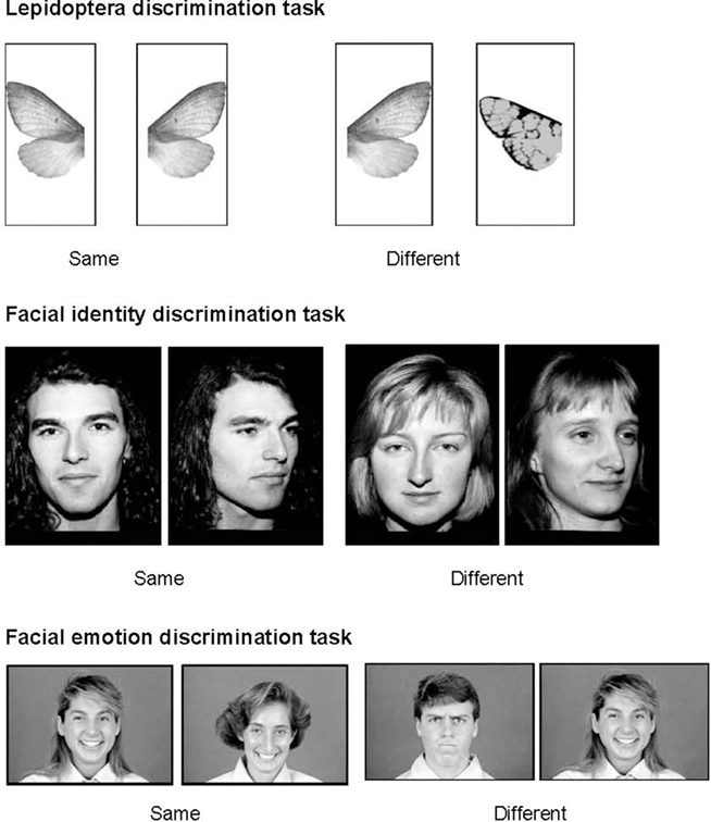 discrimination facial is what