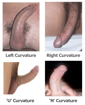 curved penis sex