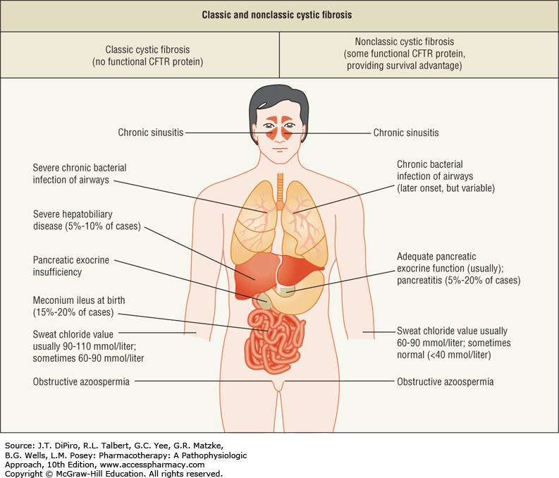cystic adult onset fibrosis