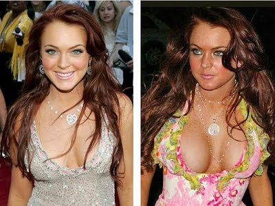 people implants had famous breast have who
